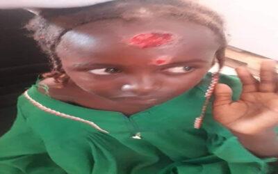 وباء اللشمانيا يهدد حياة عشرات المواطنين بشمال دارفور