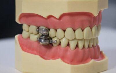 صناعة جهاز غريب لقفل أسنان الإنسان لإنقاص الوزن